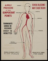 view Points in arteries where pressure reduces bleeding. Colour lithograph by Rhode Island Council of War Agencies, 194-.