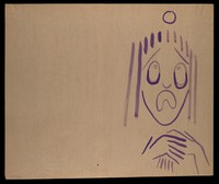 view A purple face in distress. Watercolour by M. Bishop, 1977.