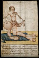 view A woman with scales on her upper body and grossly enlarged lower limbs. Watercolour, 1695.