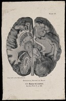 view The brain seen from the underside, sectioned horizontally; with attention to the part associated by Hollander's system of phrenology with memory for numbers. Process print, 1901, after etching, 1809.