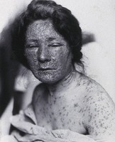 view Friern Hospital, London: a young woman, head and shoulders, suffering from smallpox. Photograph, 1890/1910.