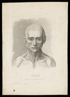 view An écorché face showing the state of the facial muscles during relaxation. Stipple engraving by H. Singleton (?) after G.T. Stubbs after G. Stubbs, 1815.