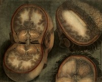 view The brain: three dissections. Colour mezzotint by J.F. Gautier d'Agoty, 1748.