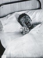 view Gloucester smallpox epidemic, 1896: J.R. Evans, aged 10 years, a smallpox patient. Photograph by H.C.F., 1896.