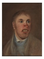 view A young man, J. Kay, afflicted with a rodent disease which has eaten away part of his face. Oil painting, ca. 1820.