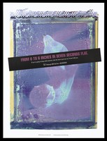 view An extended condom with a warning about the importance of using a condom when having sex; advertisement by the Pittsburgh AIDS Task Force. Colour lithograph by PhotoSynthesis, Inc., 1994.