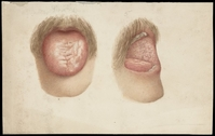 view Tongue, mouth, and moustache of a man with skin disease: two figures. Watercolour, 1892.