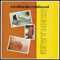 view A doctor places a thermometer in a female patient's mouth, an emaciated man and a skin rash representing a message about symptoms that suggest you have AIDS; one of a series of 4 AIDS education posters by the Population and Community Development Association (PDA) in Thailand. Colour lithograph, ca. 1995.