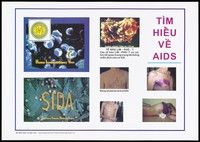 view Typical physical skin complaints caused by the HIV virus that leads to AIDS including rashes, purple blistering, emaciation and open sores; an AIDS prevention advertisement by The Ministry of Education Training, Vietnam. Colour lithograph, ca. 1995.