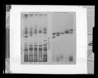 """view Autoradiograph image referenced as """"Starch gel electrophoresis autoradiography of transferrins (Smithies)"""""""
