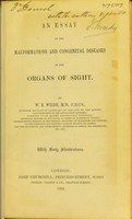 view An essay on the malformations and congenital diseases of the organs of sight / by W.R. Wilde.