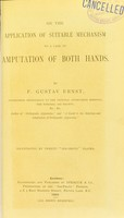 view On the application of suitable mechamism to a case of amputation of both hands / by F. Gustav Ernst.