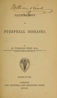 view Illustrations of puerperal diseases / by R. Uvedale West.