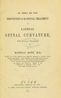 view An essay on the prevention & rational treatment of lateral spinal curvature.
