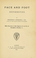 view Face and foot deformities / by Frederick Churchill.