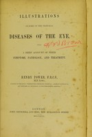 view Illustrations of some of the principal diseases of the eye : with a brief account of their symptoms, pathology, and treatment / by Henry Power.