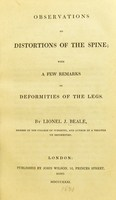 view Observations on distortions of the spine : with a few remarks on deformities of the legs / by Lionel J. Beale.