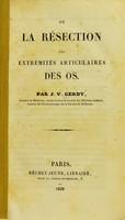 view De la résection des extrémités articulaires des os / par J.V. Gerdy.