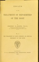 view Essays on the treatment of deformities of the body / by Frederic R. Fisher.