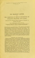 view The Bradshaw lecture on the correction of certain deformities by operative measures upon bones : delivered before the Royal College of Surgeons of England on December 8th, 1897 / by Alfred Willett.