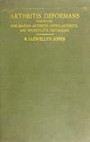 view Arthritis deformans : comprising rheumatoid arthritis, osteo-arthritis, and spondylitis deformans / by R. Llewellyn Jones.