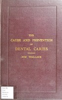 view Supplementary essays on the cause and prevention of dental caries / by J. Sim Wallace.