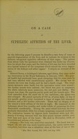 view On a case of syphilitic affection of the liver / by T. Grainger Stewart, M.D.