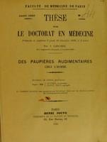 view Des paupières rudimentaires chez l'homme : thése pour le doctorat en médecine / par J. Larcher.
