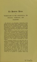 view The Hunterian Lecture on tuberculosis of the conjunctiva : its etiology, pathology, and diagnosis / by John W. H. Eyre.