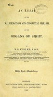 view An essay on the malformations and congenital diseases of the organs of sight / by W. R. Wilde.