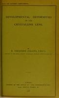 view Developmental deformities of the crystalline lens / by E. Treacher Collins.