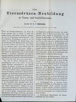 view Ueber Uterusdrusen-Neubildung in Uterus- und Ovarial-Sarcomen / von C. Rokitansky.