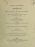 view Graphic illustrations of abortion and the diseases of menstruation / Consisting of twelve plates from drawings engraved on stone, and coloured by Mr. J. Perry, and two copper-plates from the Philosophical transactions coloured by the same artist : the whole representing forty-five specimens of aborted ova and adventitious productions of the uterus : with preliminary observations, explanations of the figures, and remarks, anatomical and physiological. By A. B. Granville.