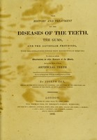 view The history and treatment of the diseases of the teeth, the gums, and the alveolar processes, with the operations which they respectively require. To which are added, observations on other diseases of the mouth, and on the mode of fixing artificial teeth / By Joseph Fox.