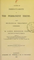 view Causes of irregularity of the permanent teeth : their mechanical treatment considered / by James Robinson.