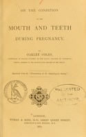 view On the condition of the mouth and teeth during pregnancy / by Oakley Coles.