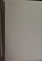 view Ein Fall von Hämophilie : Inaugural-Dissertation zur Erlangung zur Doctorwürde der hohen medizinischen Fakultät der Rheinischen Friedrich-Wilhelms-Universität zu Bonn vorgelegt am 14. Juli 1906 / von Friedrich Albers.