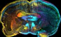 view Mouse brain, coronal view.