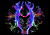 view Healthy human brain from a young adult, tractography.