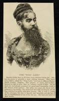 """view [Undated, illustrated (cutting? leaflet?) about bearded Annie Jones-Elliot, """"The Esau Lady""""]."""