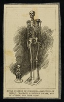 view [Newspaper clipping showing the skeletons of Mademoiselle Crachani, a Sicilian dwarf and Patrick O'Brien, the Irish Giant on display at the Royal College of Surgeons].