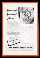 view Hemorragia funcional uterina ... Factor Antimenorrágico Armour ... : Deficiencias parciales del complejo B / The Armour Laboratories.