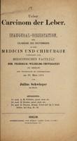 view Ueber Carcinom der Leber ... / von Julius Schwieger.